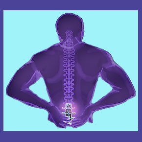 Arthritis in the Lumbar Spine