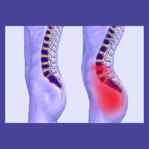 Idiopathic Lower Back Pain