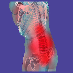 Knowledge therapy for lower back pain
