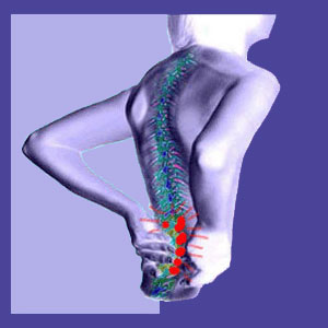 Lower Back Pain from Standing