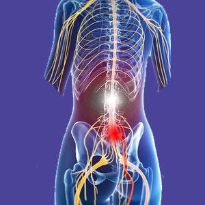 Lumbar foraminal stenosis