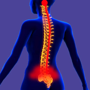 Lumbosacral Back Pain
