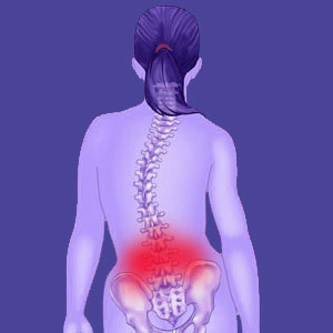 Scoliosis lower back pain